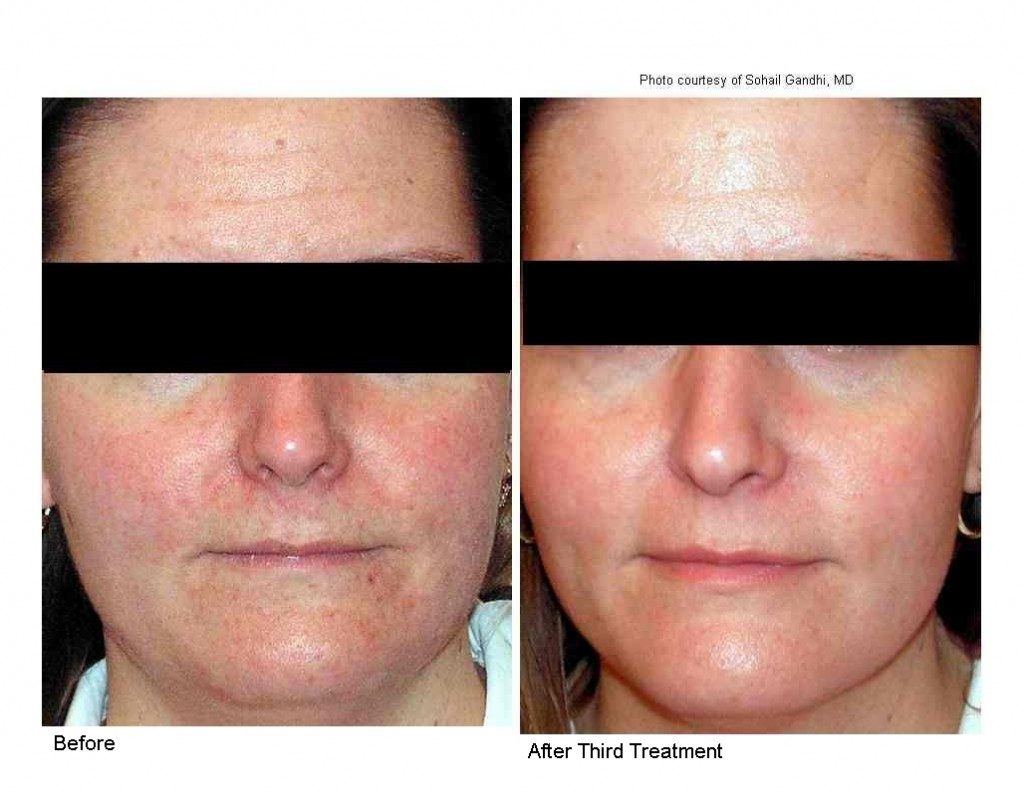 Photogenesis IPL freckle removal
