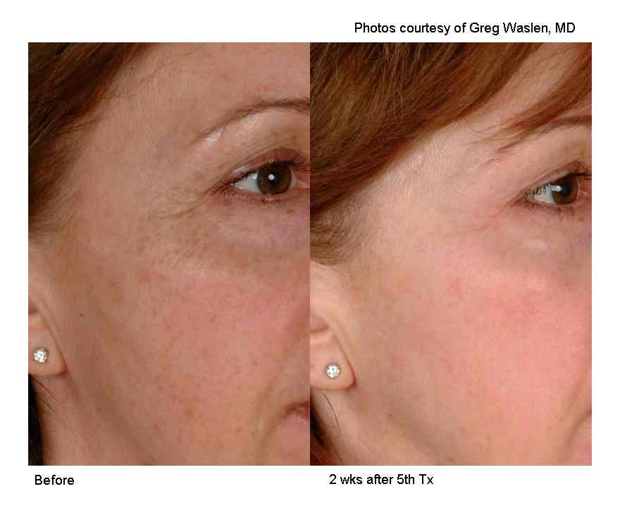 Get Rid Of Age Spots - T  Douglas Gurley MD
