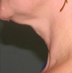 Atlanta SkinPen - neck