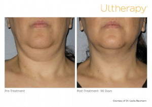 Dr. Gurley features Ultherapy, the only FDA-approved non-invasive device that uses micro-focused ultrasound to lift skin on the face and neck. The results for plastic surgery without going under the knife.