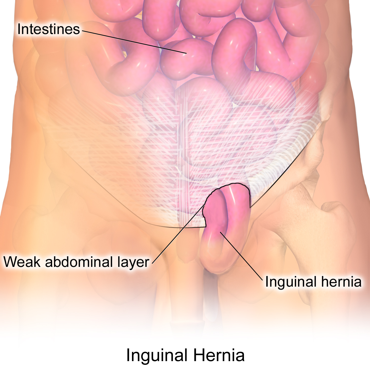 I have an Inguinal Hernia: Do I Need Surgery? - T  Douglas Gurley MD